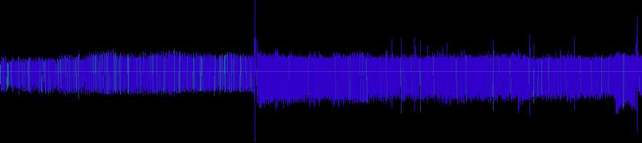 myheartbeat mitral valve...