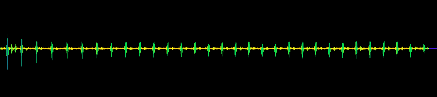 Image Result For Free Heartbeat Wav